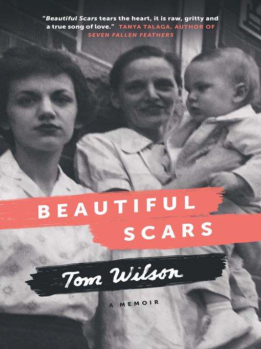 Title details for Beautiful Scars by Tom Wilson - Available