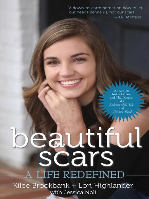 Title details for Beautiful Scars by Kilee Brookbank - Wait list