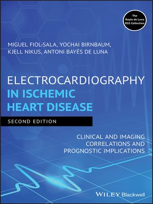 cover image of Electrocardiography in Ischemic Heart Disease