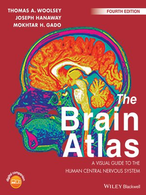 cover image of The Brain Atlas