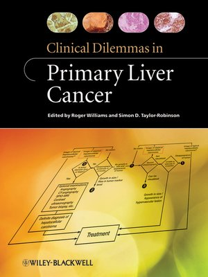 cover image of Clinical Dilemmas in Primary Liver Cancer