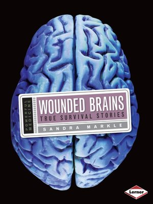 cover image of Wounded Brains