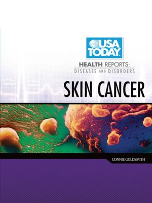 cover image of Skin Cancer