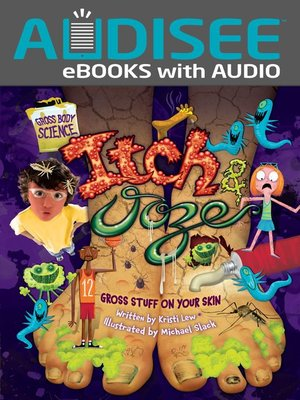 cover image of Itch & Ooze