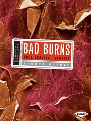 cover image of Bad Burns