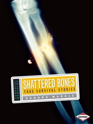 cover image of Shattered Bones