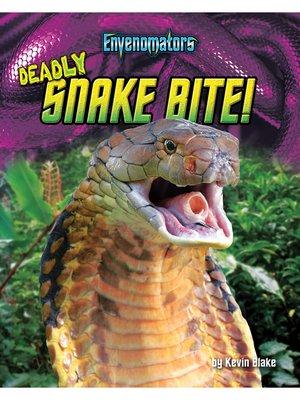 cover image of Deadly Snake Bite!