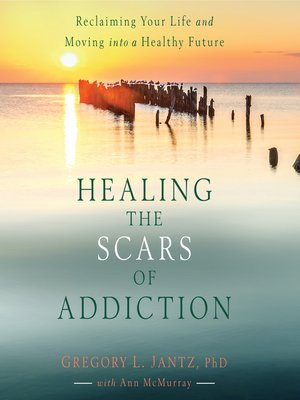 cover image of Healing the Scars of Addiction