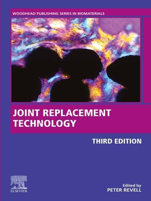cover image of Joint Replacement Technology