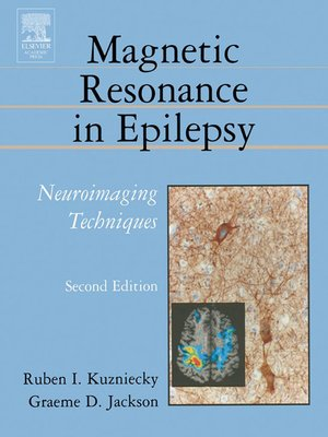 cover image of Magnetic Resonance in Epilepsy
