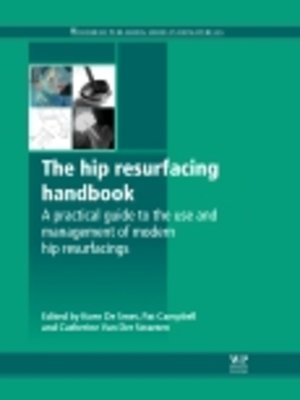 cover image of The Hip Resurfacing Handbook