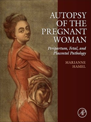 cover image of Autopsy of the Pregnant Woman