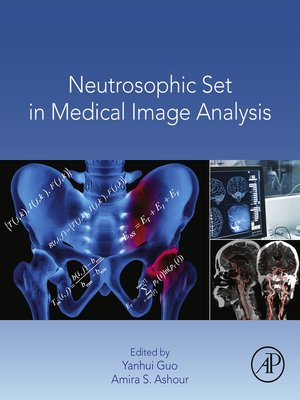 cover image of Neutrosophic Set in Medical Image Analysis