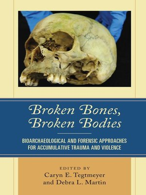 cover image of Broken Bones, Broken Bodies