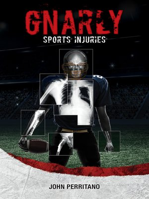 cover image of Gnarly Sports Injuries