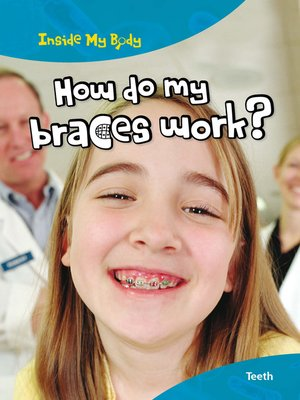 cover image of How do my Braces Work?