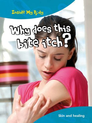 cover image of Why does this Bite Itch?