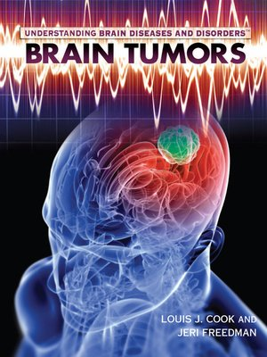 cover image of Brain Tumors