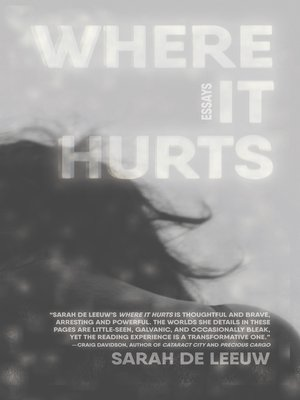 cover image of Where It Hurts