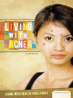 cover image of Living with Acne