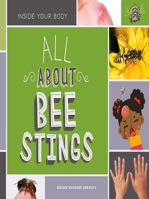 cover image of All About Bee Stings