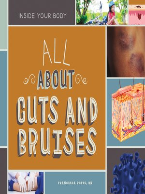 cover image of All About Cuts and Bruises