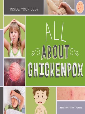 cover image of All About Chickenpox