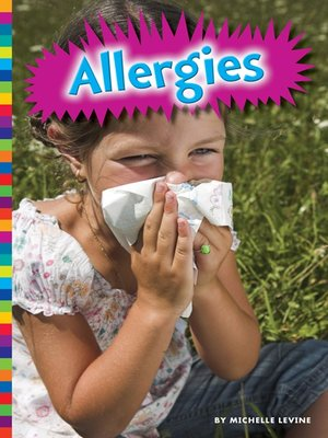cover image of Allergies