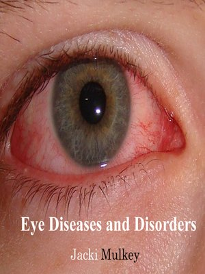 cover image of Eye Diseases and Disorders