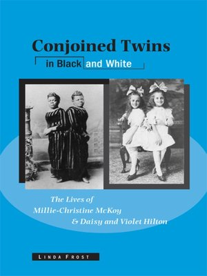 cover image of Conjoined Twins in Black and White