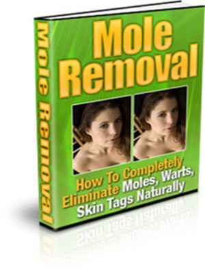 cover image of Mole Removal
