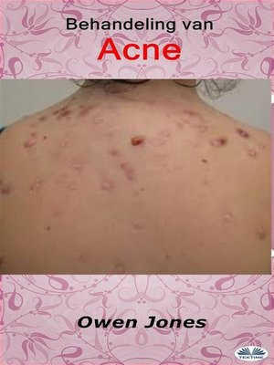 cover image of Behandeling Van Acne
