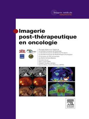 cover image of Imagerie post-thérapeutique en oncologie