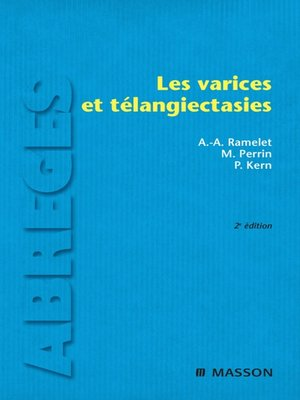 cover image of Les varices et télangiectasies