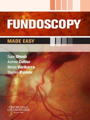 fundoscopy made easy e book by sujoy ghosh overdrive rakuten