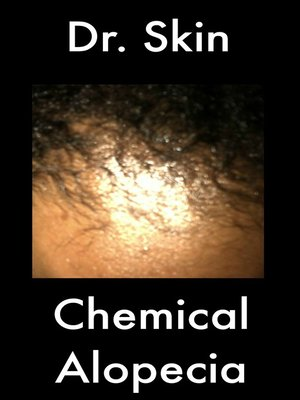 cover image of Chemical Alopecia