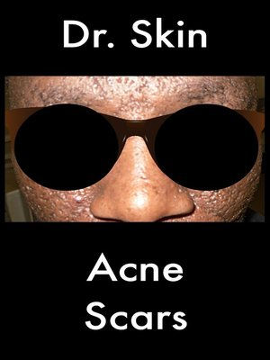 cover image of Acne Scars