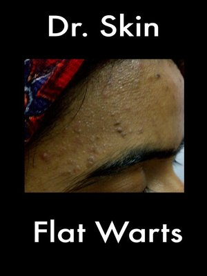 cover image of Flat Warts