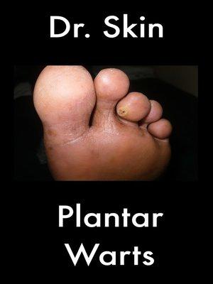 cover image of Plantar Warts