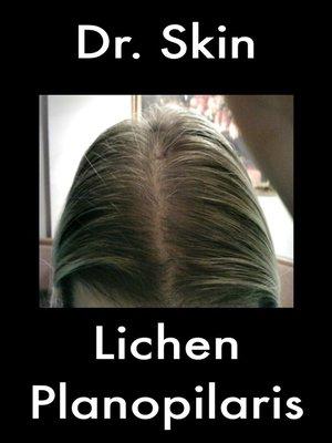 cover image of Lichen Planopilaris