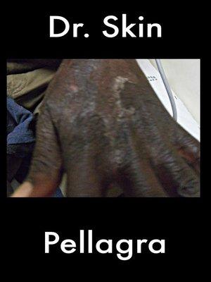 cover image of Pellagra