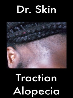 cover image of Traction Alopecia