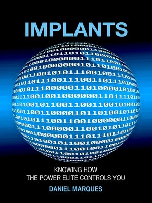 cover image of Implants