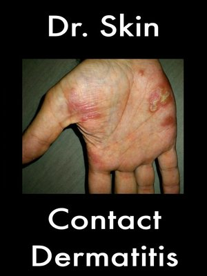 cover image of Contact Dermatitis