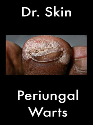 cover image of Periungal Warts