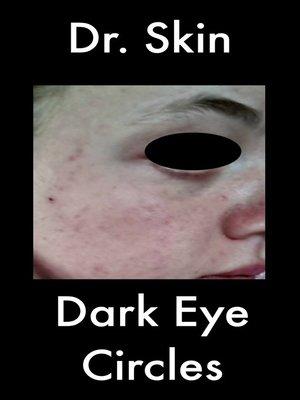 cover image of Dark Eye Circles