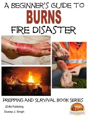 cover image of A Beginner's Guide to Burns