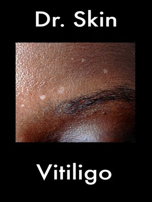 cover image of Vitiligo