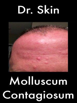 cover image of Molluscum Contagiosum