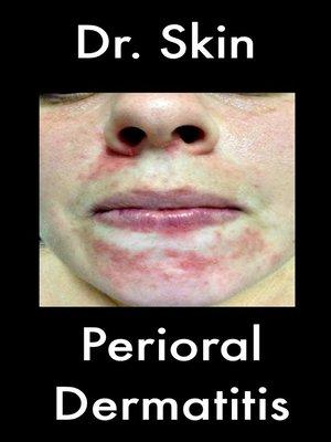 cover image of Perioral Dermatitis